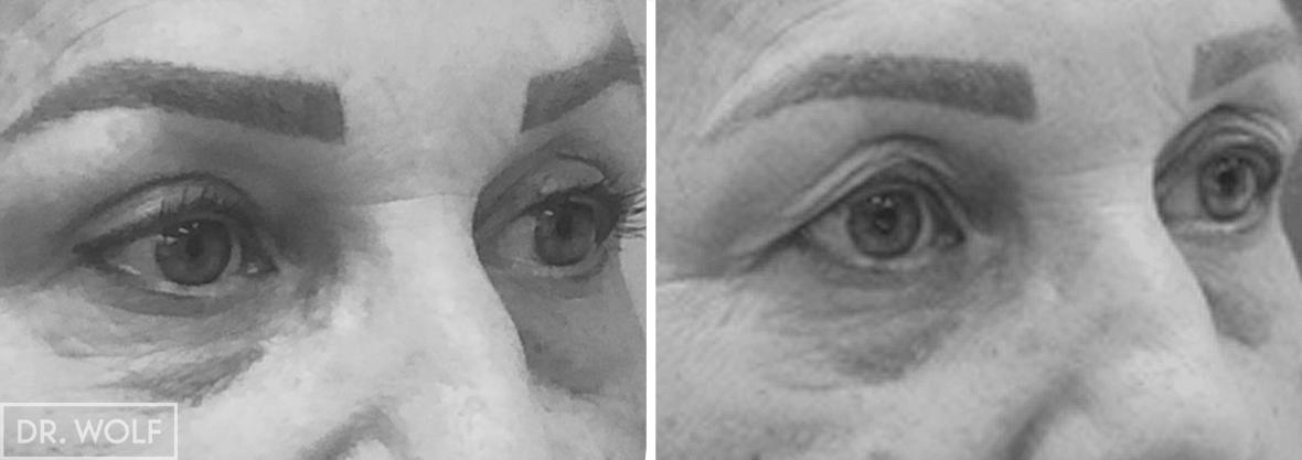 ניתוח הרמת עפעפיים תמונות לפני ואחרי