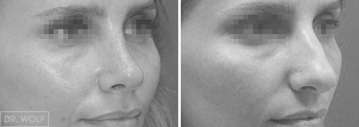 תוצאות ניתוח אף תמונות לפני אחרי צד ימין