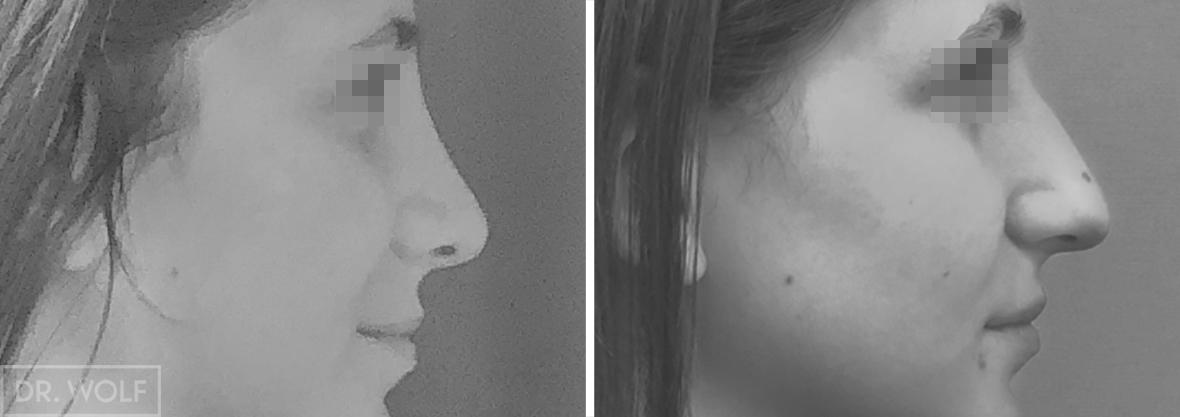 ניתוח אף תמונות לפני ואחרי