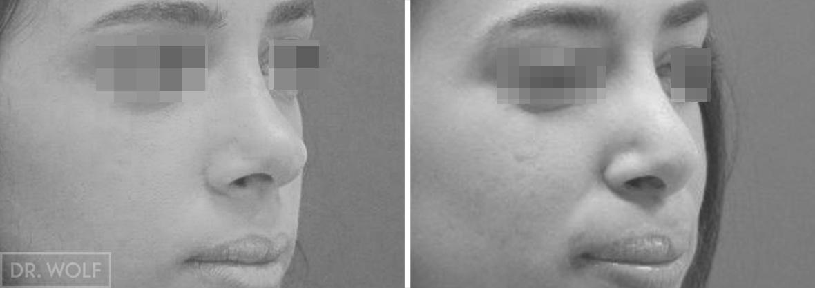 ניתוח אף תוצאות מבט מצד ימין