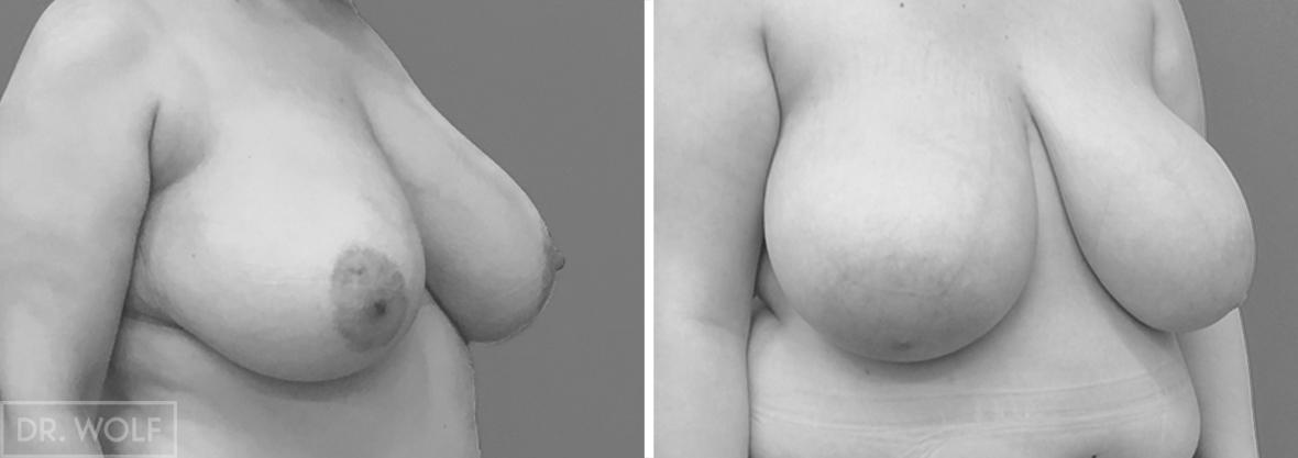 ניתוח הקטנת חזה מקרה 5 צד ימין
