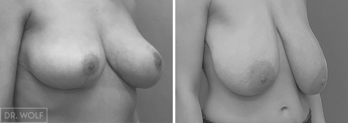 ניתוח הרמת חזה מקרה 2 צד ימין