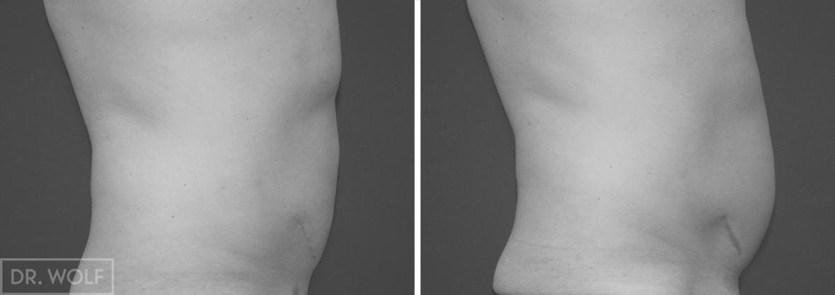 תוצאות שאיבת שומן צד ימין