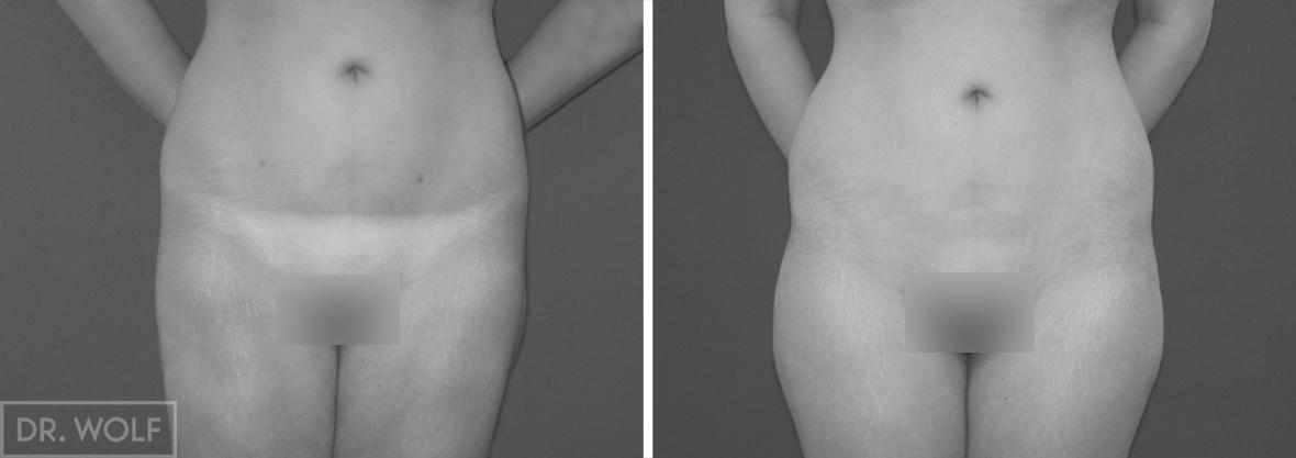 ניתוח שאיבת שומן תמונות לפני ואחרי