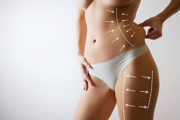 החלמה מניתוח מתיחת בטן