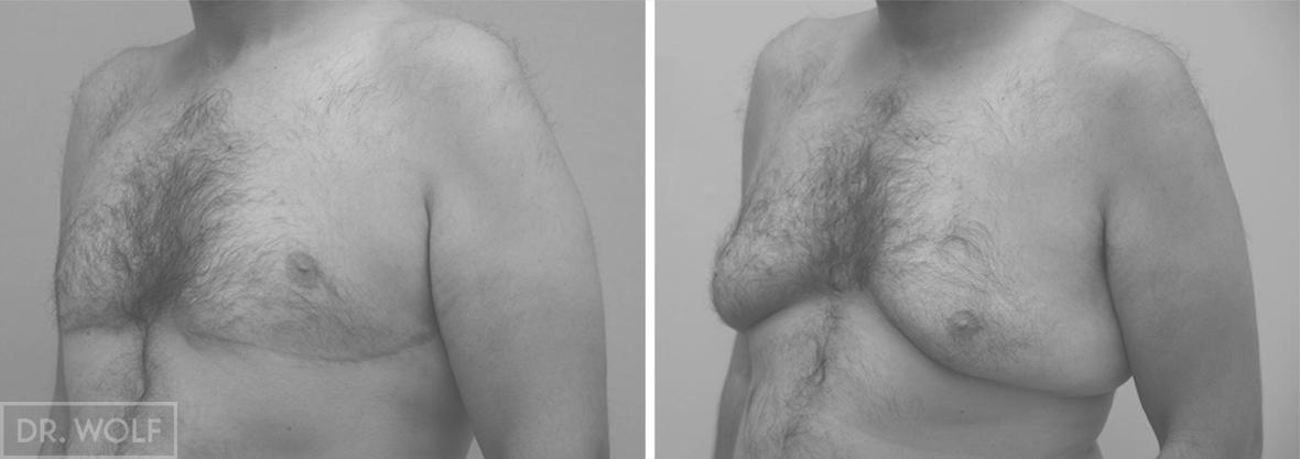 ניתוח הקטנת חזה לגבר לפני ואחרי - צד שמאל