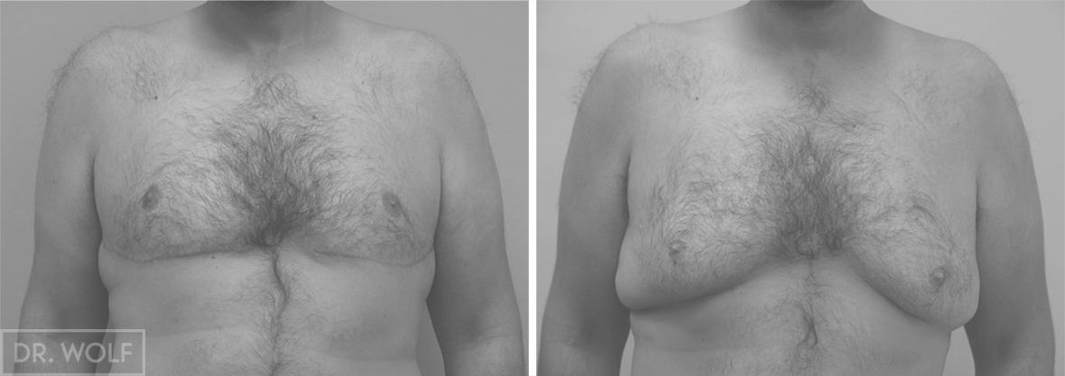 ניתוח הקטנת חזה לגבר לפני ואחרי - חזית
