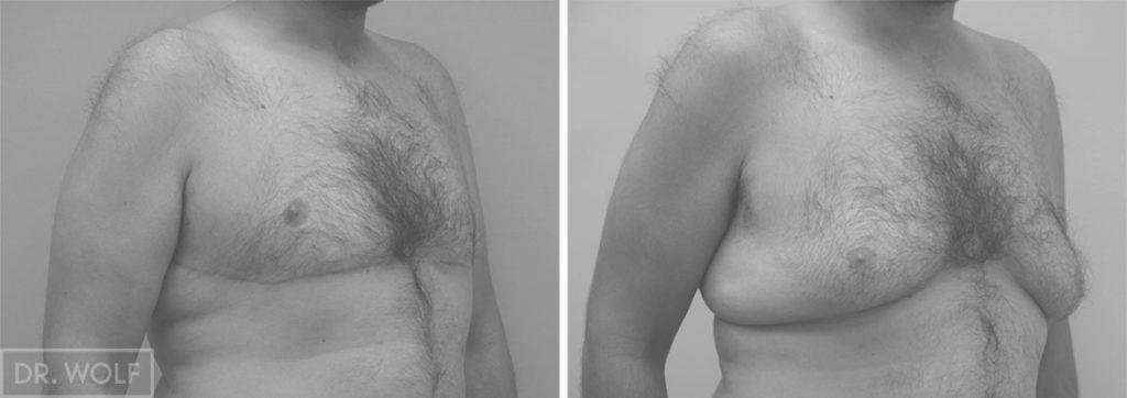 ניתוח הקטנת חזה לגבר לפני ואחרי - צד ימין