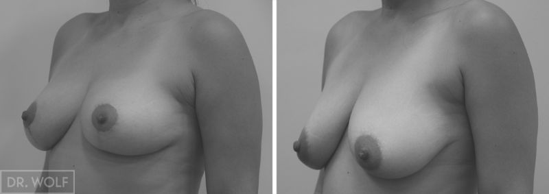 תוצאות ניתוח הרמת חזה - צד שמאל