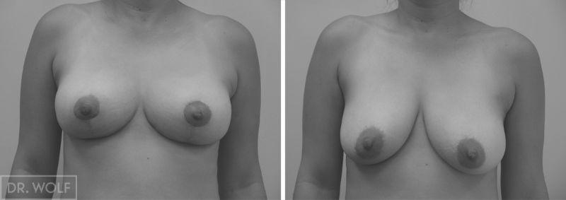 תוצאות ניתוח הרמת חזה - חזית