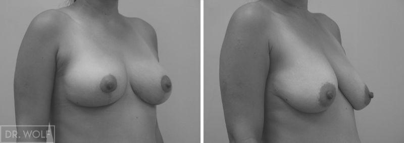 תוצאות ניתוח הרמת חזה -צד ימין