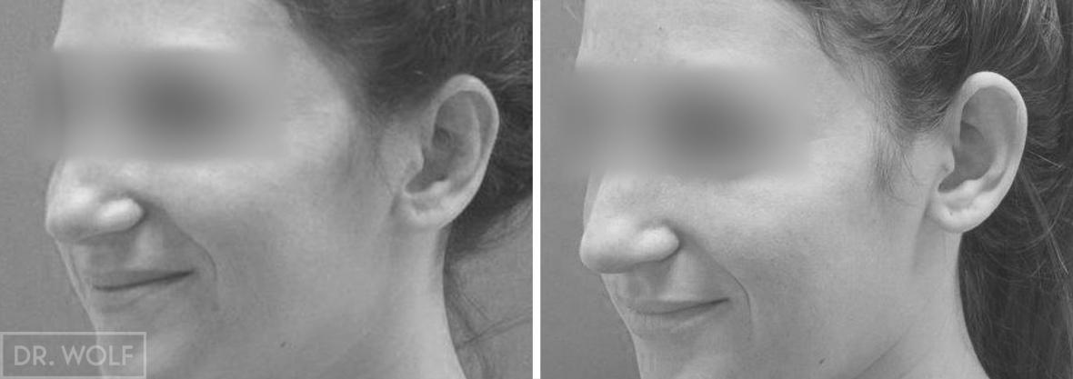 ניתוח אוטופלסטי - תוצאות - צד שמאל