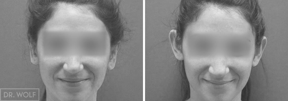 ניתוח אוטופלסטי - תוצאות - חזית