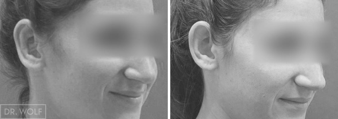 ניתוח אוטופלסטי - תוצאות - צד ימין
