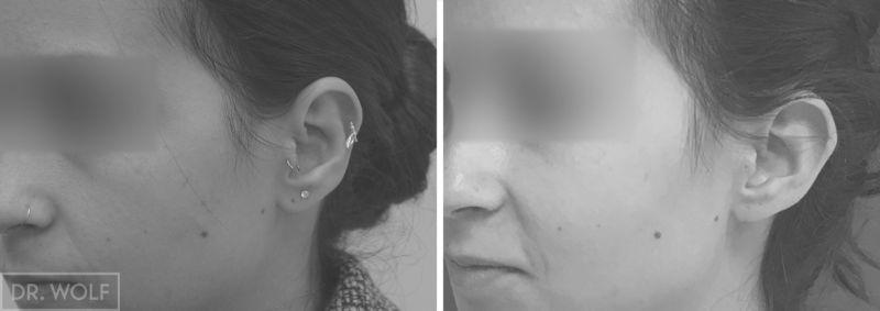 הצמדת אוזניים לפני ואחרי - צד שמאל