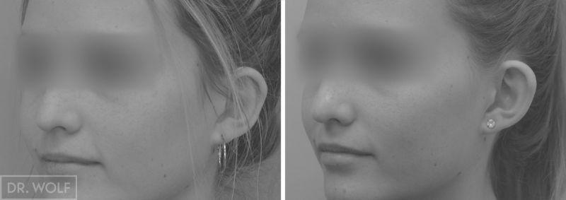 תוצאות ניתוח אוטופלסטי - צד שמאל