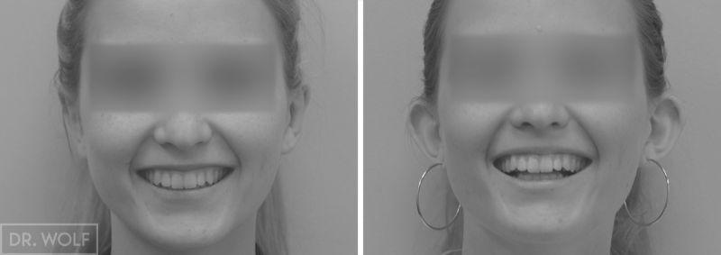 תוצאות ניתוח אוטופלסטי - חזית