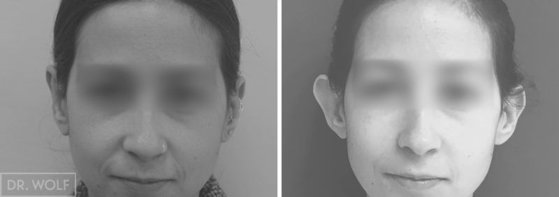 הצמדת אוזניים לפני ואחרי - חזית