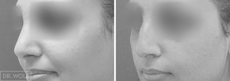 ניתוח אף לפני ואחרי - מקרה 1 - צד שמאל