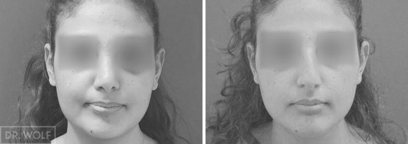 ניתוח אף לפני ואחרי - מקרה 1 - חזית