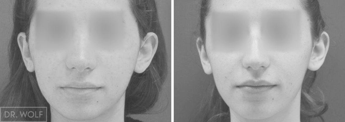 ניתוח אף לפני ואחרי - מקרה 2 - חזית