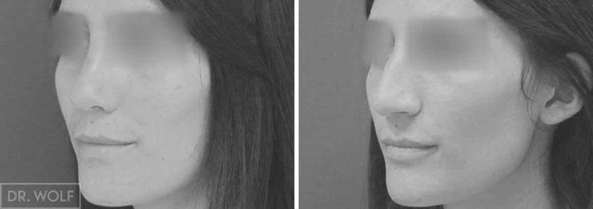ניתוח אף לפני ואחרי - מקרה 3 - שמאל