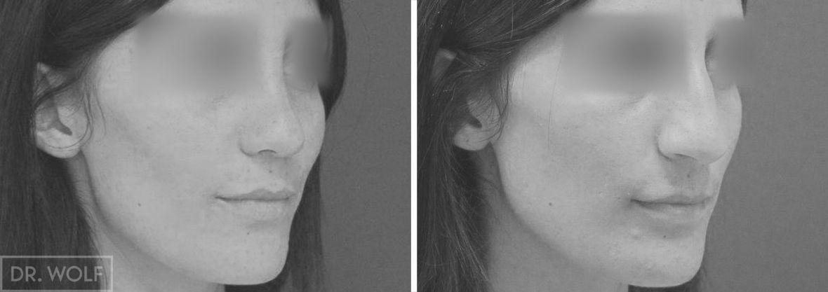 ניתוח אף לפני ואחרי - מקרה 3 - ימין