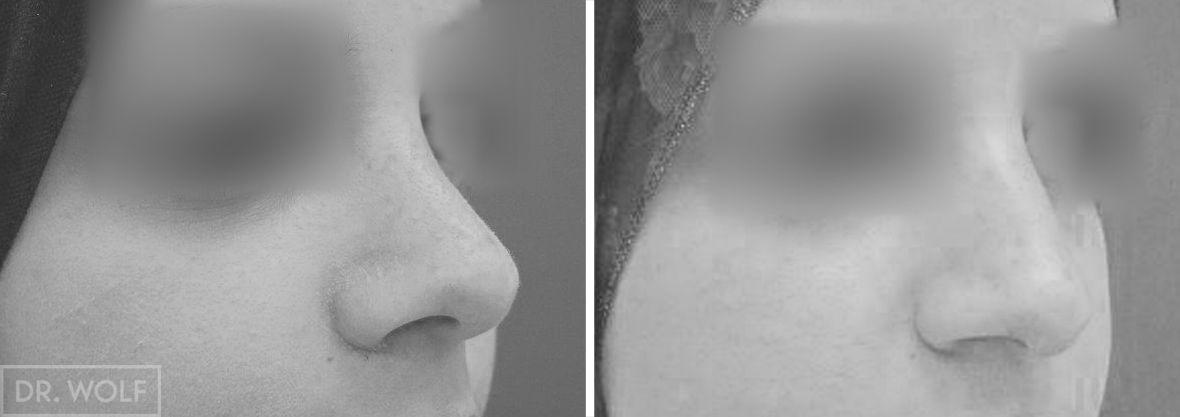 ניתוח אף לפני ואחרי - מקרה 4 - ימין