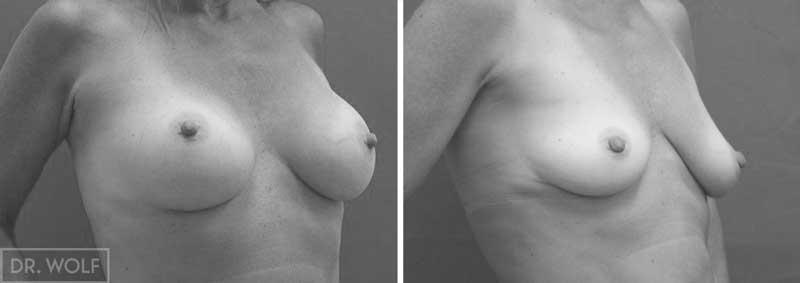 ניתוח הגדלת חזה מקרה 17