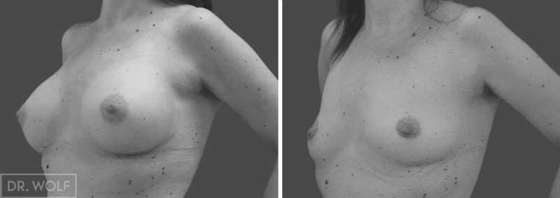 ניתוח הגדלת חזה מקרה 19 שמאל