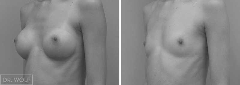 ניתוח הגדלת חזה מקרה 20 שמאל