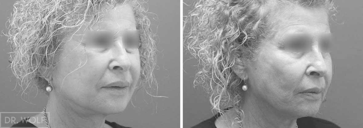 תוצאות ניתוח מתיחת פנים - מקרה 3 ימין