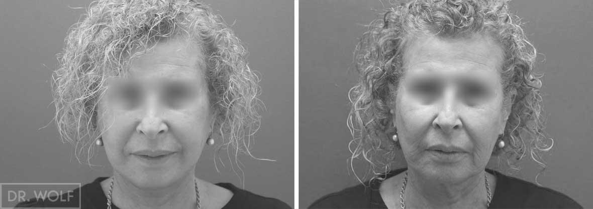 תוצאות ניתוח מתיחת פנים - מקרה 3 חזית