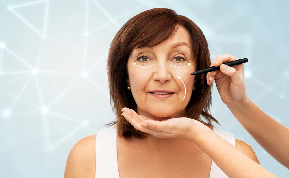 מהו ניתוח מתיחת פנים ? ד