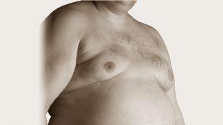 ניתוח גניקומסטיה - עומר וולף